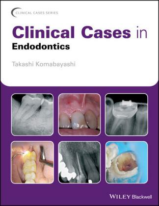 Clinical Cases in Endodontics