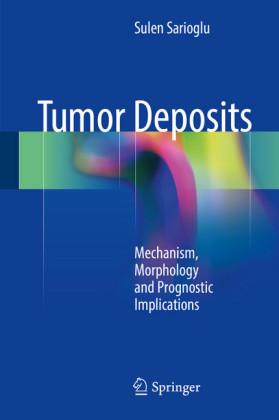 Tumor Deposits