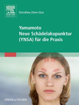 Yamamoto Neue Schädelakupunktur (YNSA)