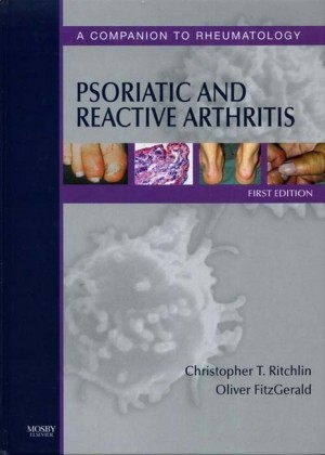 Psoriatic and Reactive Arthritis E-Book