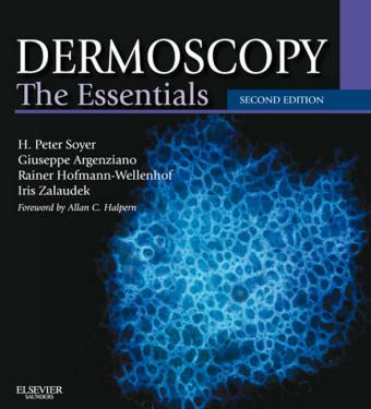 Dermoscopy E-Book