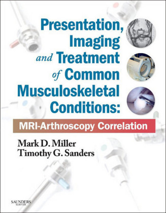 Presentation, Imaging and Treatment of Common Musculoskeletal Conditions E-Book