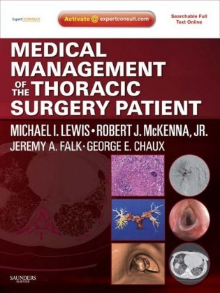 Medical Management of the Thoracic Surgery Patient