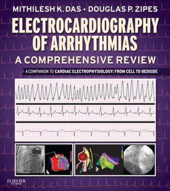 Electrocardiography of Arrhythmias: A Comprehensive Review E-Book