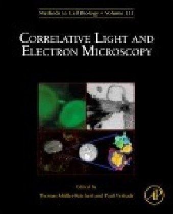 Correlative Light and Electron MIcroscopy