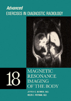Magnetic Resonance Imaging of the Body