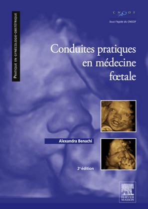 Conduites pratiques en médecine foetale