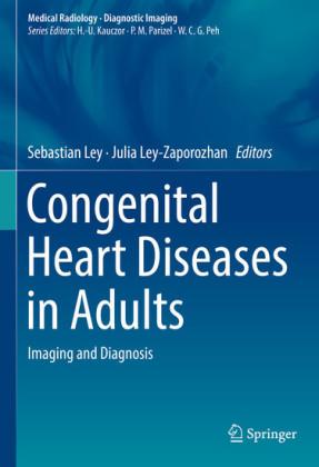 Congenital Heart Diseases in Adults