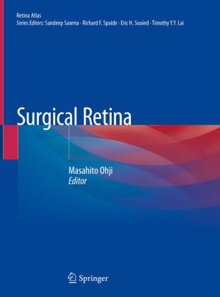 Surgical Retina