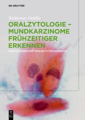 Oralzytologie - Mundkarzinome frühzeitiger erkennen