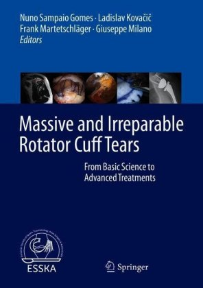 Massive and Irreparable Rotator Cuff Tears